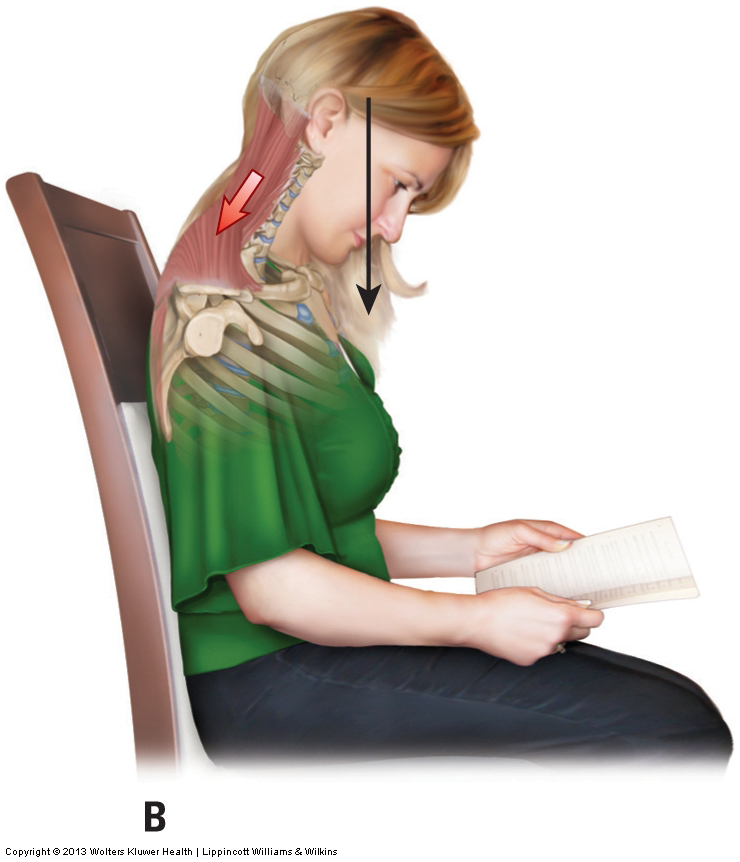 Protracted head posture often leads to tight spasmed muscles in the neck. Permission: Joseph E. Muscolino. Advanced Treatment Techniques for the Manual Therapist: Neck (2013).