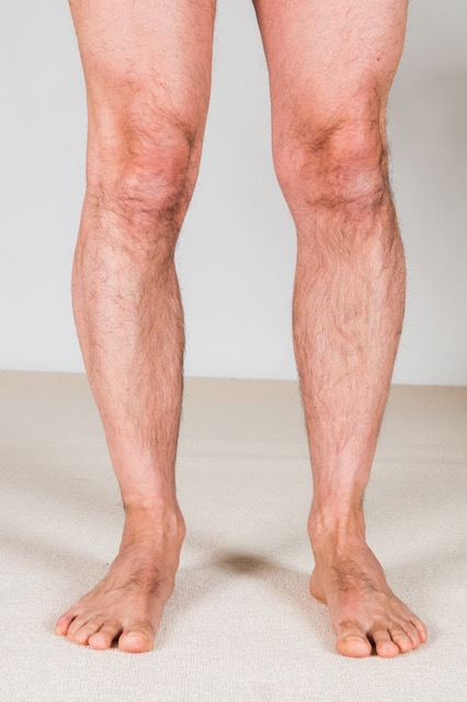 Overpronation of the right foot with the lower extremity rotated in medially. Note the orientation of the right patella compared to the left. Permission: Joseph E. Muscolino.