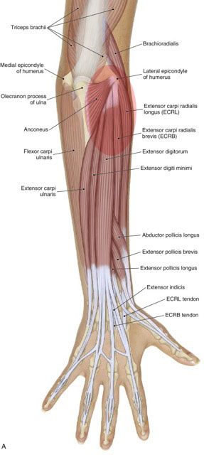 Tennis elbow involves pain at the common extensor belly/tendon and the lateral epicondyle of the humerus. Permission: Joseph E. Muscolino, The Muscle and Bone Palpation Manual (2016), Elsevier.