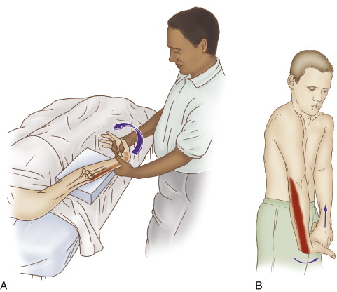 Self-care (and therapist-assisted) stretch for tennis elbow (for the extensor carpi radialis brevis muscle). Permission: Joseph E. Muscolino, The Muscle and Bone Palpation Manual (2016), Elsevier.