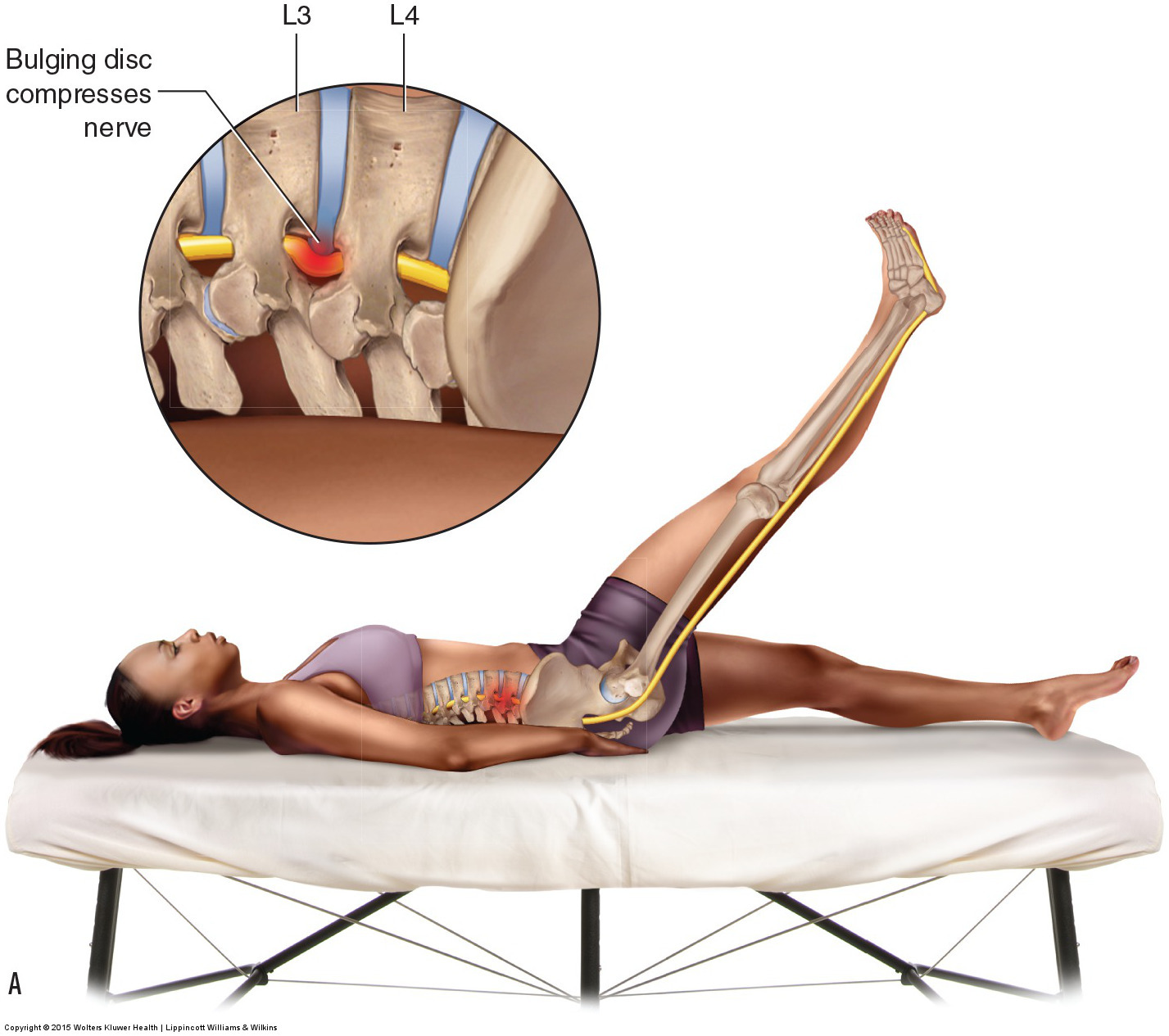Straight leg raise orthopedic assessment test for a lumbar pathologic disc. Permission: Joseph E. Muscolino. Manual Therapy for the Low Back and Pelvis (2015).