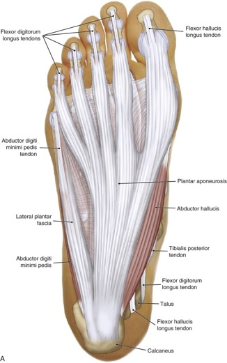plantar fascia of the foot if inflamed can cause plantar fasciitis