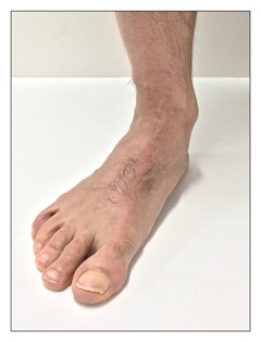 A collapsed arch structure (overpronation) of the foot on weight bearing. Permission: Joseph E. Muscolino.