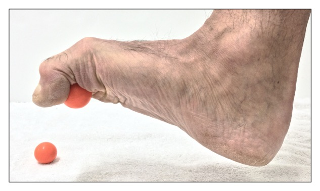 Self-care strengthening exercise for the intrinsic musculature of the foot. Permission: Joseph E. Muscolino.