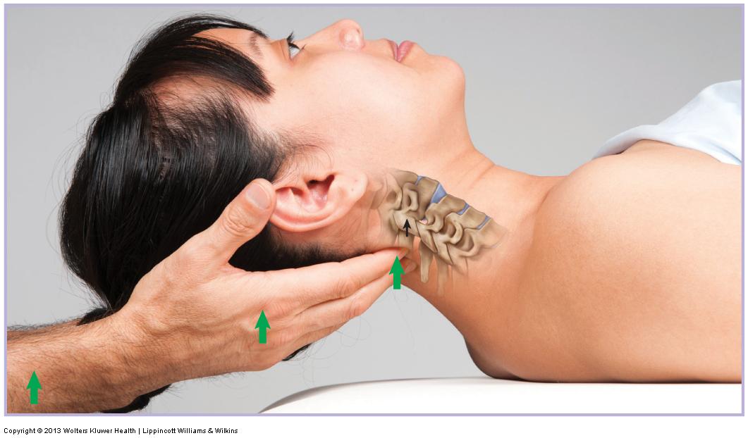 Anterior glide mobilization of the cervical spine. Permission: Joseph E. Muscolino. Advanced Treatment Techniques for the Manual Therapist: Neck (2013).