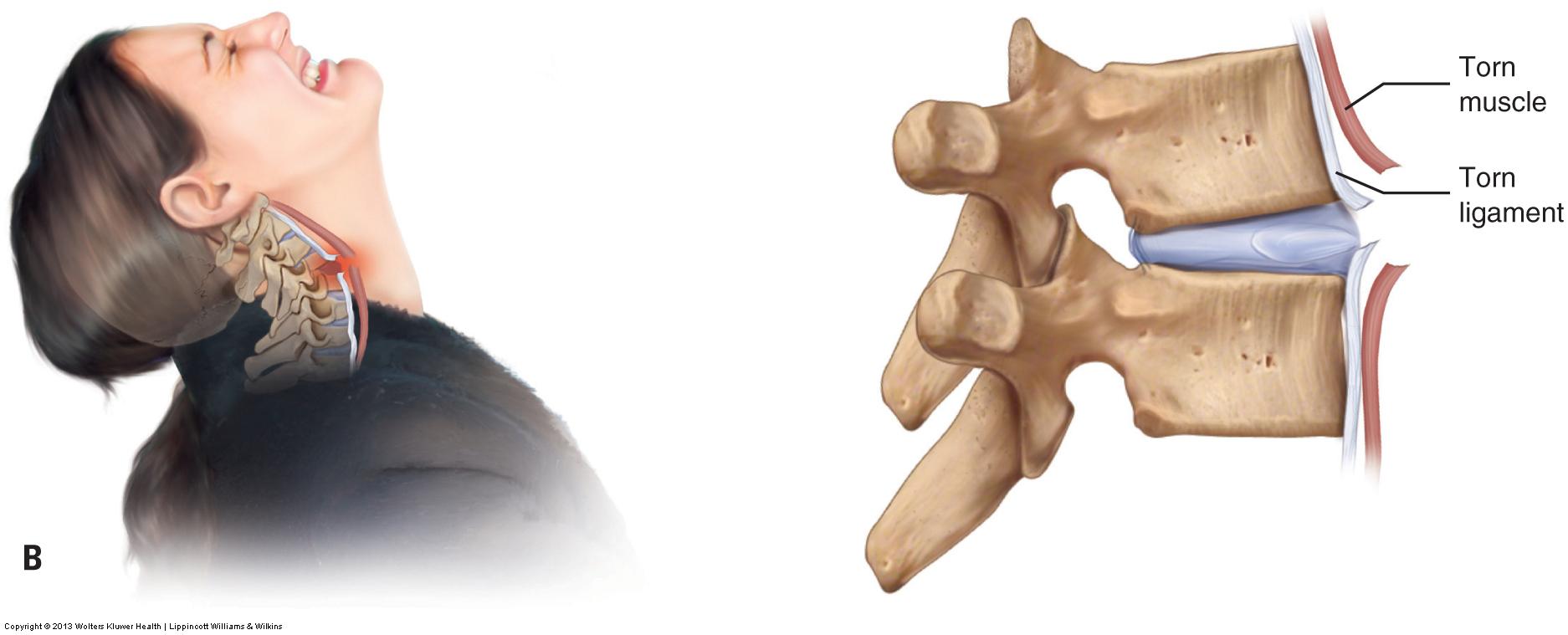 Whiplash into extension tearing anterior myofascial tissues. Permission: Joseph E. Muscolino. Advanced Treatment Techniques for the Manual Therapist: Neck (2013).