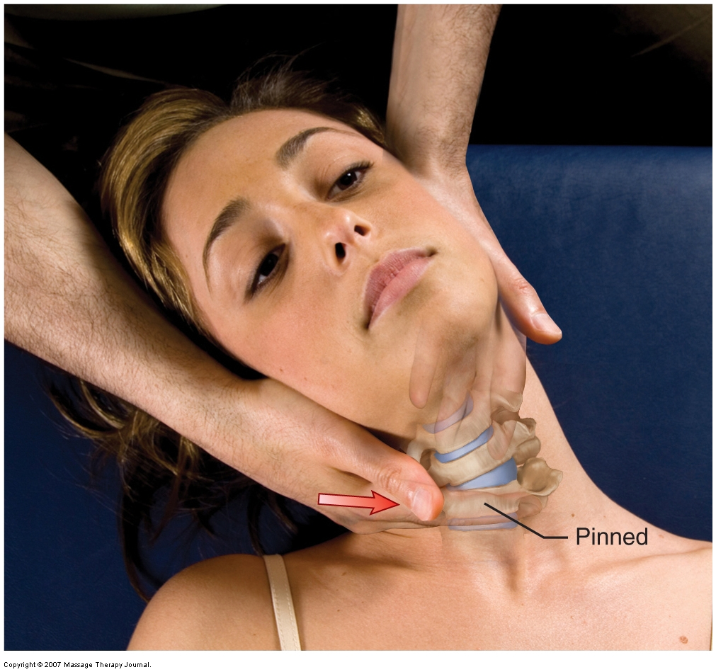 Grave IV joint mobilization (arthrofascial stretching) for the lower cervical spine. Permission: Joseph E. Muscolino. Advanced Treatment Techniques for the Manual Therapist: Neck (2013).
