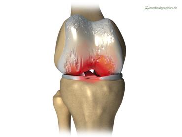 Osteoarthritis (OA) of the right knee