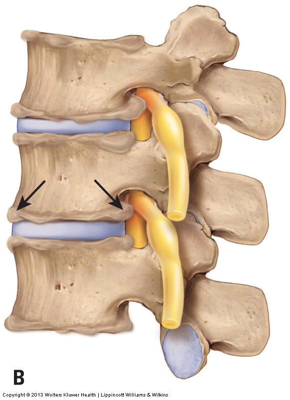 Osteoarthritis (Degenerative Joint Disease) of the Cervical Spine