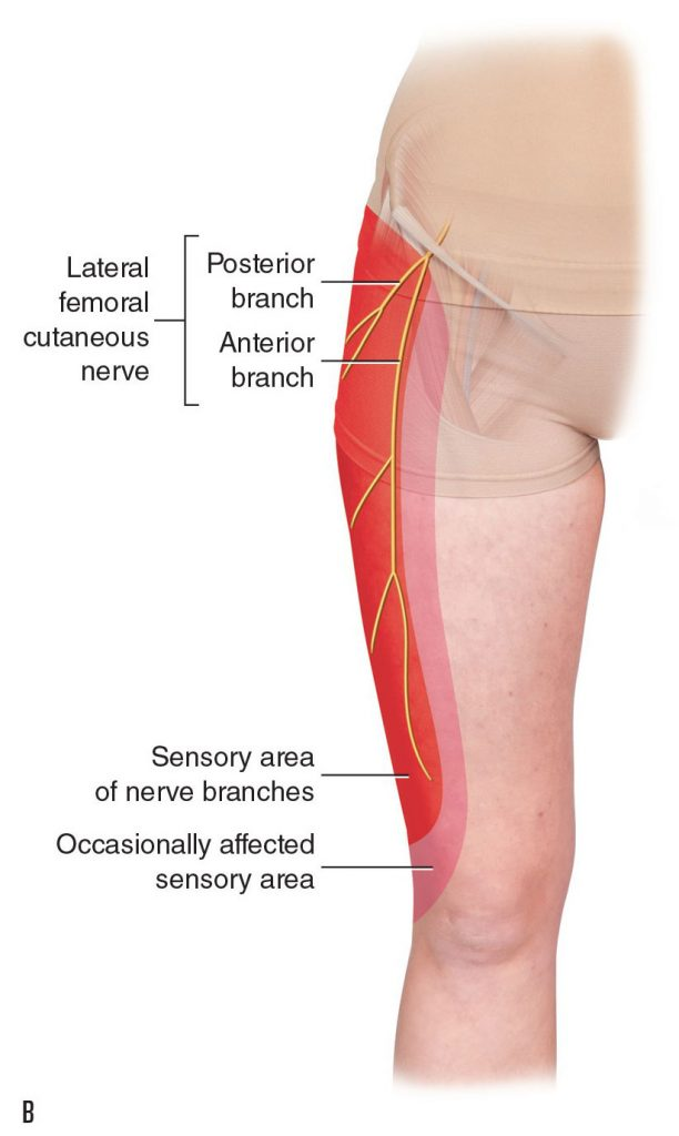 lateral femoral cutaneous nerve dermatome with meralgia paresthetica