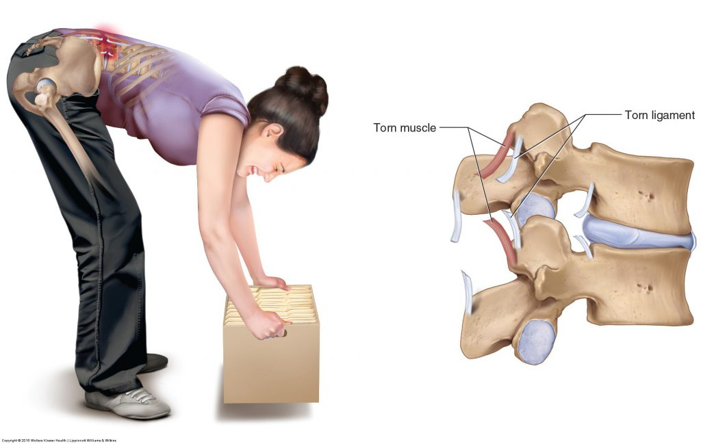 Sprains and Strains of the Low Back and Pelvis can occur simply by bending forward