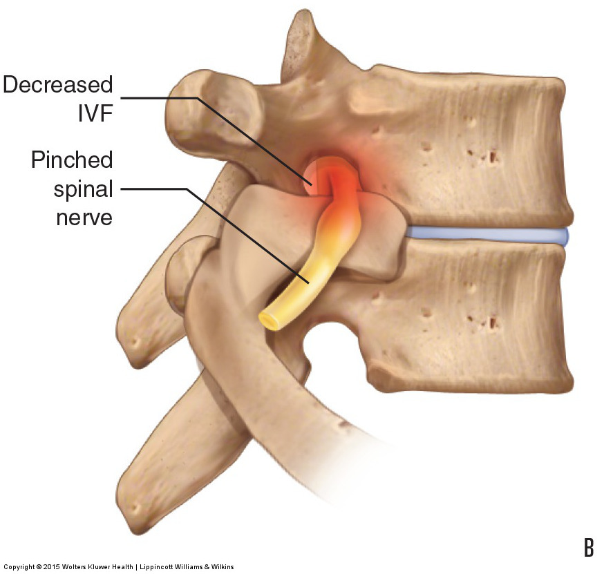Pathologic Disc Conditions of the Lumbar Spine and Sciatica