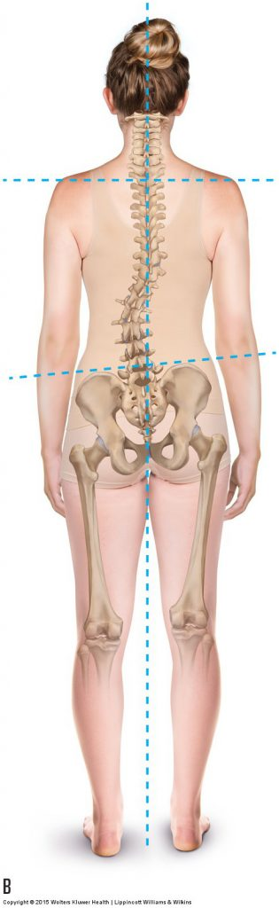 A dropped arch drops the iliac crest height on that side, resulting in a compensatory scoliosis.