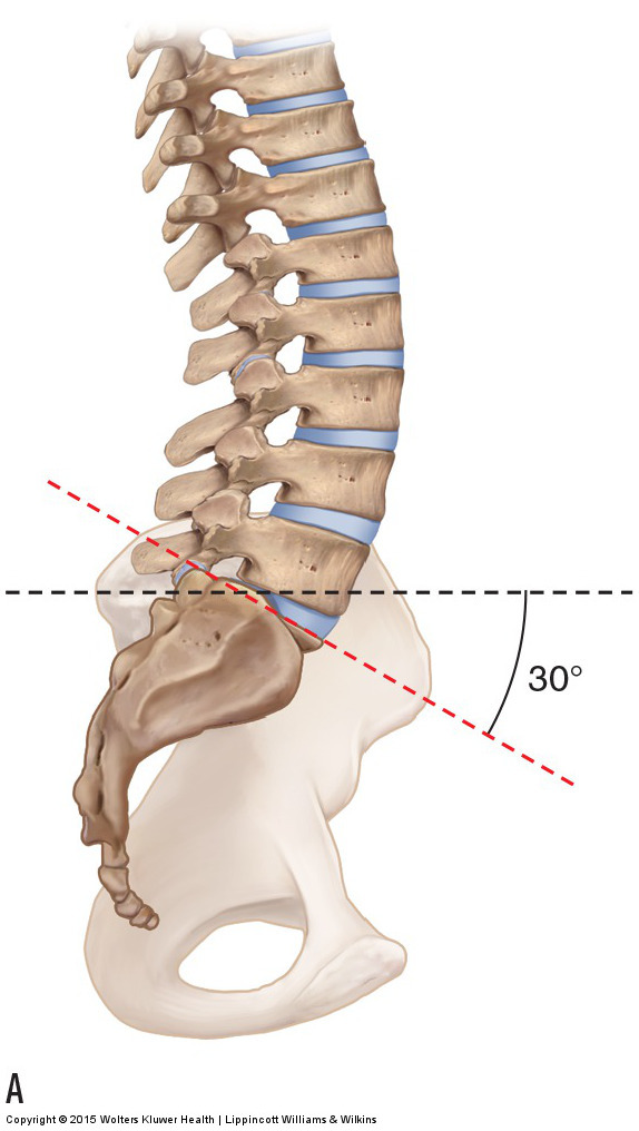 an ideal sacral base angle of 30 degrees