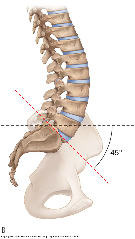 an increased sacral base angle of 45 degrees