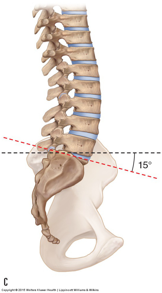 a decreased sacral base angle of 15 degrees