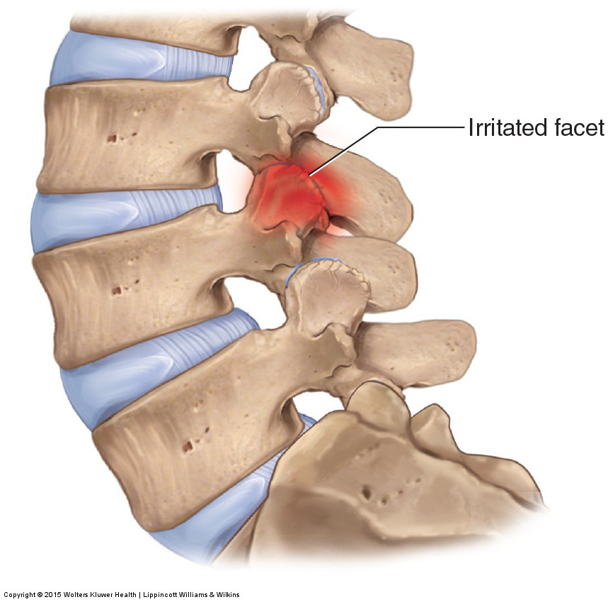 excessive posterior loading of the lumbar spine leads to facet syndrome