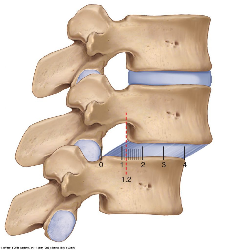 Spondylolisthesis: Back Condition and Treatment