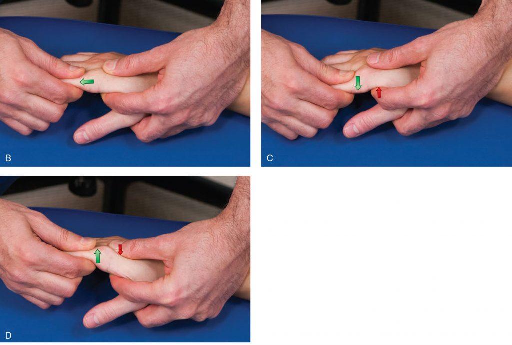 técnicas de Mobilização Articular